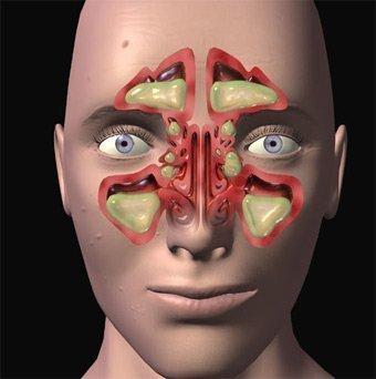 Sinusite e seus efeitos no rosto