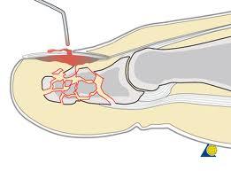 Do que o fungo em pernas stupnyakh é tratado