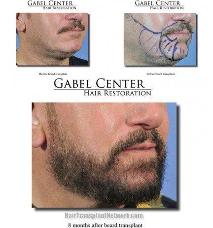 produto para crescer barba funciona