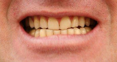 Dentes Amarelos Evite Estes 10 Alimentos Saude Melhor