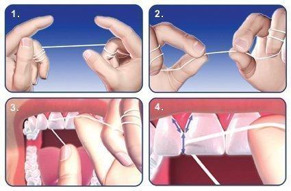 20dd07196 Fio dental! Como usar e importância! - Saúde Melhor